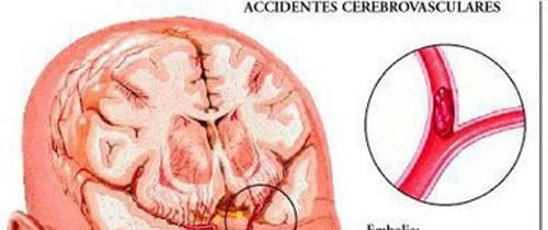 Cómo detectar y prevenir accidentes cerebro vasculares