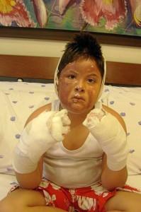 Santiago Albarracín Caballero fue otra víctima de las aparentemente inofensivas bombas.