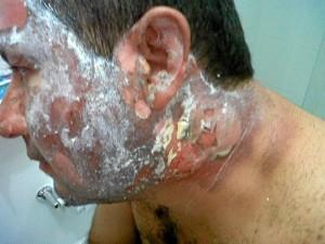 El padre de Jacobo fue uno de los más afectados. Sus manos, cara y cuello resultaron seriamente afectadas.